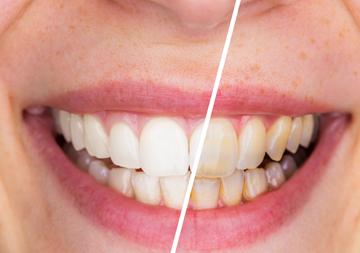 The Hills Dental Care St Louis Hills Dentist Stl Dentist 63109