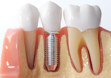 dental-implants the hills dental care st louis hills dentist