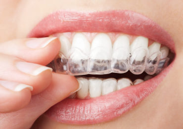 invisalign-370x260 the hills dental care st louis hills dentist